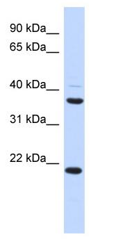 Western blot - Anti-TMEM74 antibody (ab87239)