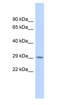 Western blot - Anti-RFXAP antibody (ab87251)