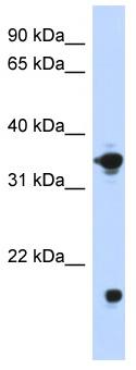 Western blot - Anti-Glycerol 3 Phosphate Dehydrogenase antibody (ab87286)