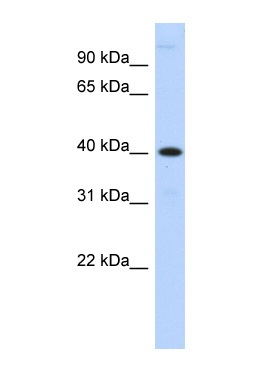 Western blot - Anti-MPPE1 antibody (ab87298)