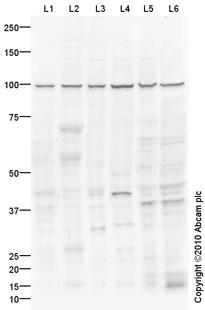 Western blot - Anti-Cpt1c antibody (ab87498)