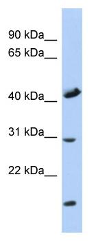 Western blot - Anti-COX18 antibody (ab87568)