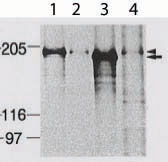 Immunoprecipitation - Anti-Dnmt1 antibody - ChIP Grade (ab87656)