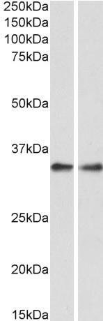 Western blot - Anti-PPP4C antibody (ab87672)