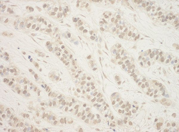 Immunohistochemistry (Formalin/PFA-fixed paraffin-embedded sections) - Anti-FLCN antibody (ab87753)