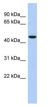 Western blot - Anti-ZNF566 antibody (ab87781)