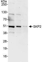 Western blot - Anti-SKP2 antibody (ab87809)