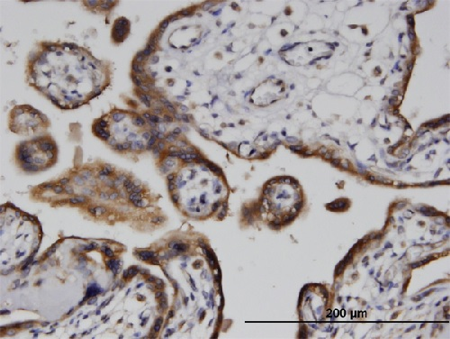 Immunohistochemistry (Formalin/PFA-fixed paraffin-embedded sections) - Anti-ADPRH antibody (ab87989)