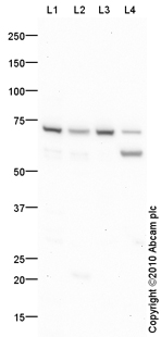 Western blot - Anti-Prolactin Receptor antibody (ab87992)
