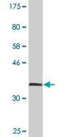 Western blot - Catalase antibody [2G6] (ab88067)