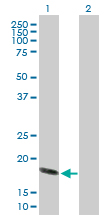 Western blot - Anti-Hsp20 antibody (ab88362)
