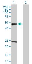 Western blot - Anti-ACADM antibody (ab88507)