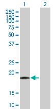 Western blot - Anti-DR1 antibody (ab88597)