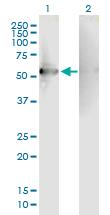 Western blot - Anti-RGS7 antibody (ab88643)