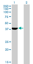 Western blot - Anti-Septin 2 antibody (ab88657)