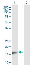 Western blot - UBE2V1 antibody (ab88679)