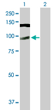 Western blot - Anti-CWC22 antibody (ab88689)