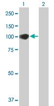 Western blot - Anti-CCDC21 antibody (ab88690)