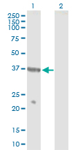 Western blot - Anti-NPR2L antibody (ab88691)