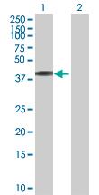 Western blot - Anti-NHLRC2 antibody (ab88725)