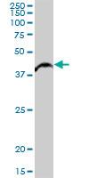 Western blot - Anti-ALKBH1 antibody (ab88775)