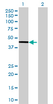 Western blot - ABH1 antibody (ab88775)