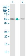 Western blot - Anti-TUBB4Q antibody (ab88815)