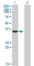 Western blot - Anti-Cdk5 antibody (ab88837)