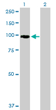 Western blot - Anti-FBXO34 antibody (ab88861)