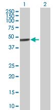 Western blot - Anti-ZNF468 antibody (ab88862)
