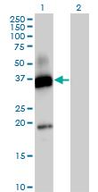 Western blot - Anti-CD300 antigen antibody (ab88873)