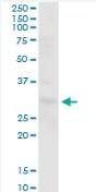 Western blot - Anti-PGLS antibody (ab88890)