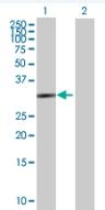 Western blot - Anti-HSD17B6 antibody (ab88892)