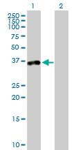 Western blot - Anti-TTC1 antibody (ab88895)