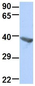 Western blot - Anti-TRIB1 antibody (ab89021)
