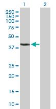Western blot - Anti-FDPS antibody (ab89023)