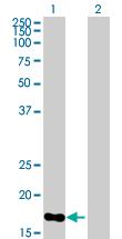 Western blot - Anti-SPC25 antibody (ab89028)