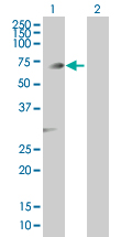 Western blot - Anti-PGM3 antibody (ab89093)