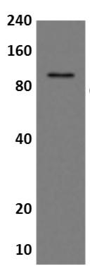 Western blot - Anti-CD36 antibody [MM0170-7K35] (ab89212)