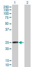 Western blot - Anti-FAM3D antibody (ab89285)