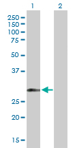 Western blot - Anti-HLA Class II DRB1 antibody (ab89315)