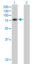 Western blot - Anti-GARS antibody (ab89522)