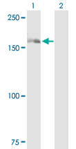 Western blot - Anti-DHX29 antibody (ab89526)