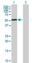 Western blot - Anti-PACSIN1 antibody (ab89604)