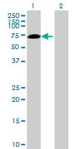 Western blot - Anti-SWAP70 antibody (ab89605)
