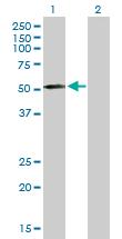 Western blot - Anti-MMP10 antibody (ab89638)
