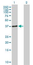 Western blot - Anti-Troponin T1 antibody (ab89641)