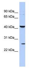 Western blot - Anti-KCNMB4 antibody (ab89703)