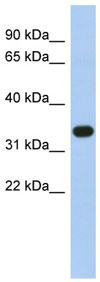 Western blot - Anti-SULT1B1 antibody (ab89707)