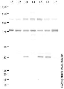Western blot - Anti-AARE antibody (ab89724)